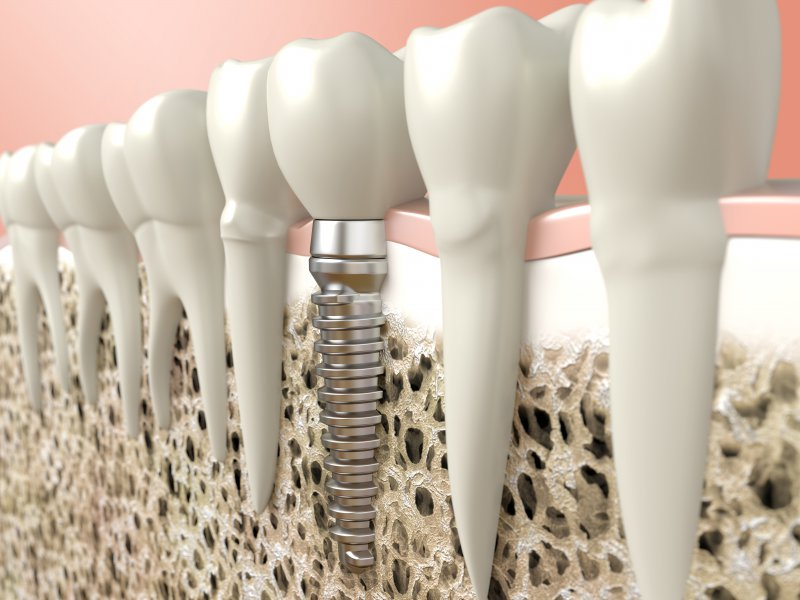 Get Familiar With Popular Myths and Facts About Dental Implants